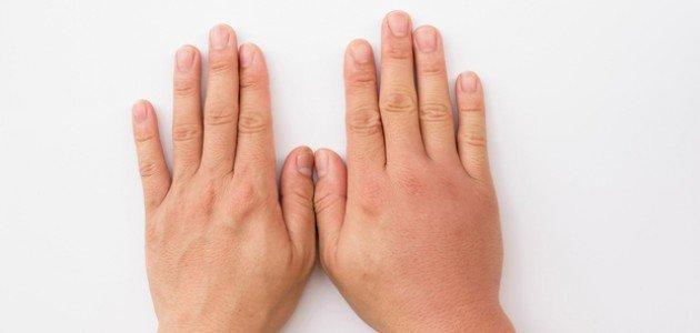 7 أسباب لانتفاخ اليد المفاجئ