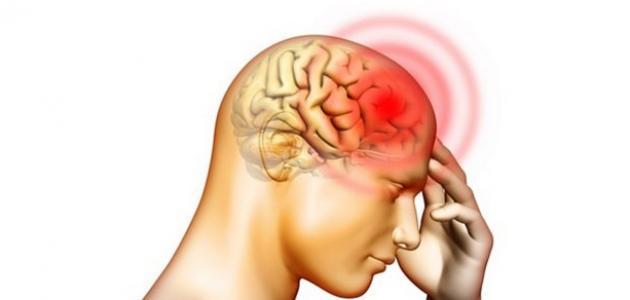 ما أعراض الجلطة الدماغية؟