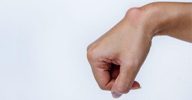 ما أسباب ظهور كيس زلالي في اليد؟